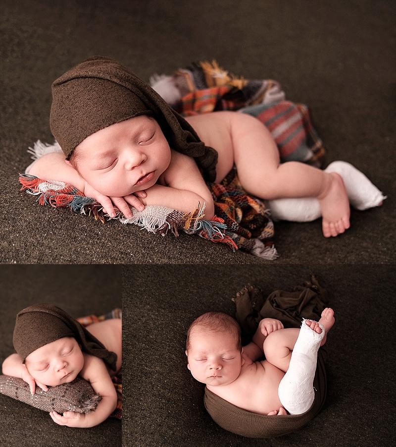 Macomb Newborn Photographer newborn boy with cast on leg